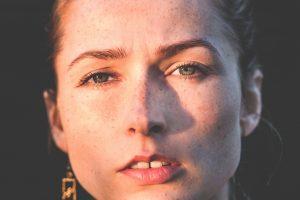 Macchie della pelle: le cause e le soluzioni