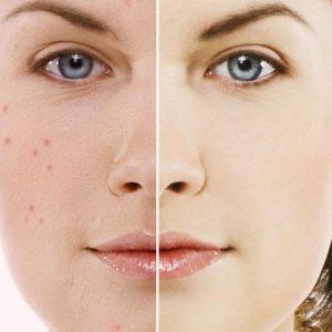 acne-acambg